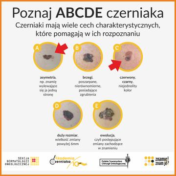 ABCDE czerniak.png